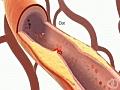 Diabetes amp CVD New Survey | BahVideo.com